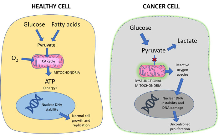 could cancer be a metabolic disease nextgen medicine